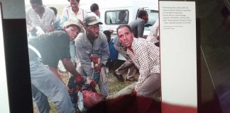 Image of injured protester in South Africa during apartheid